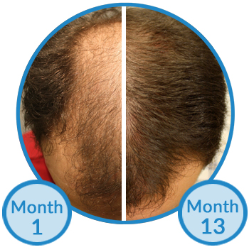 minoxidil treatment for hair growth